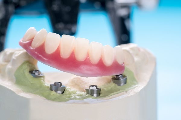Missing Teeth Replacement: Implant Supported Dentures